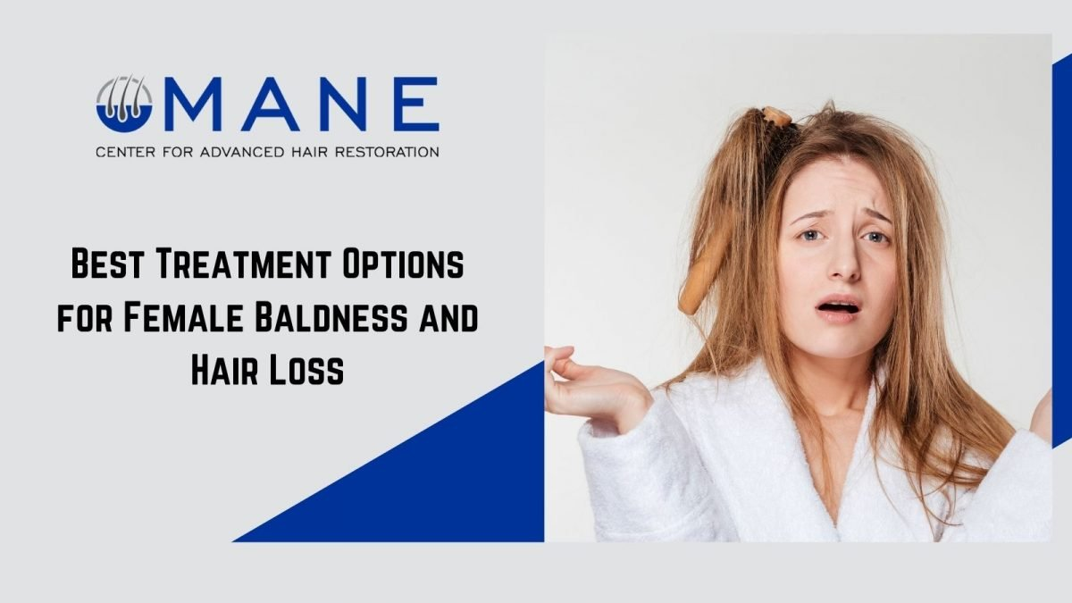 Best Treatment Options for Female Baldness and Hair Loss