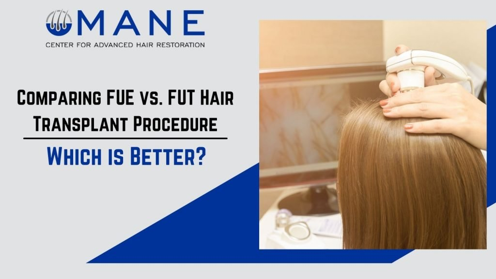 Comparing FUE vs. FUT Hair Transplant Procedure – Which is Better?