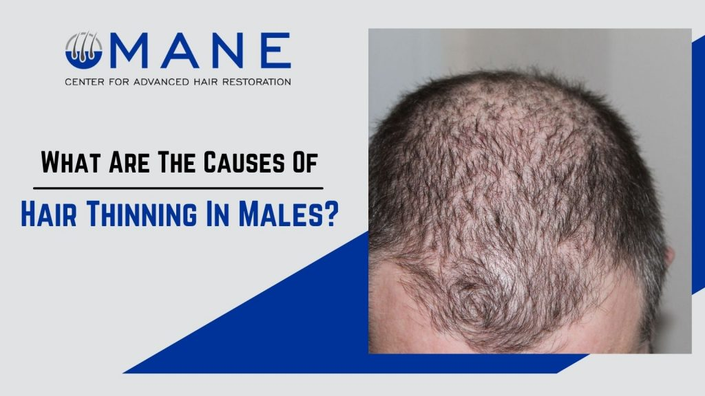What Are The Causes Of Hair Thinning In Males?