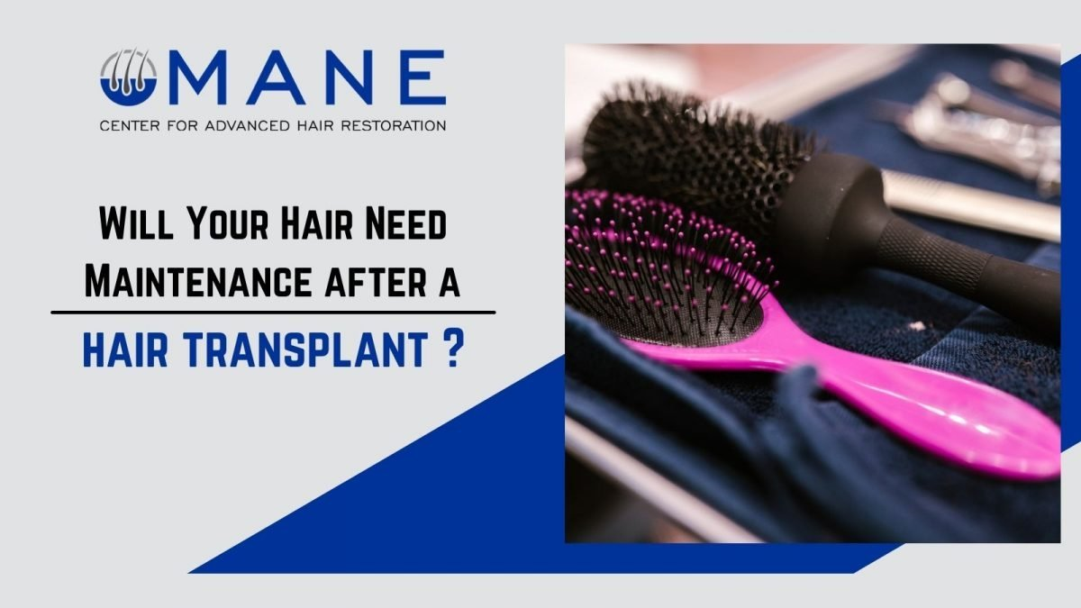 Will Your Hair Need Maintenance after a hair transplant?