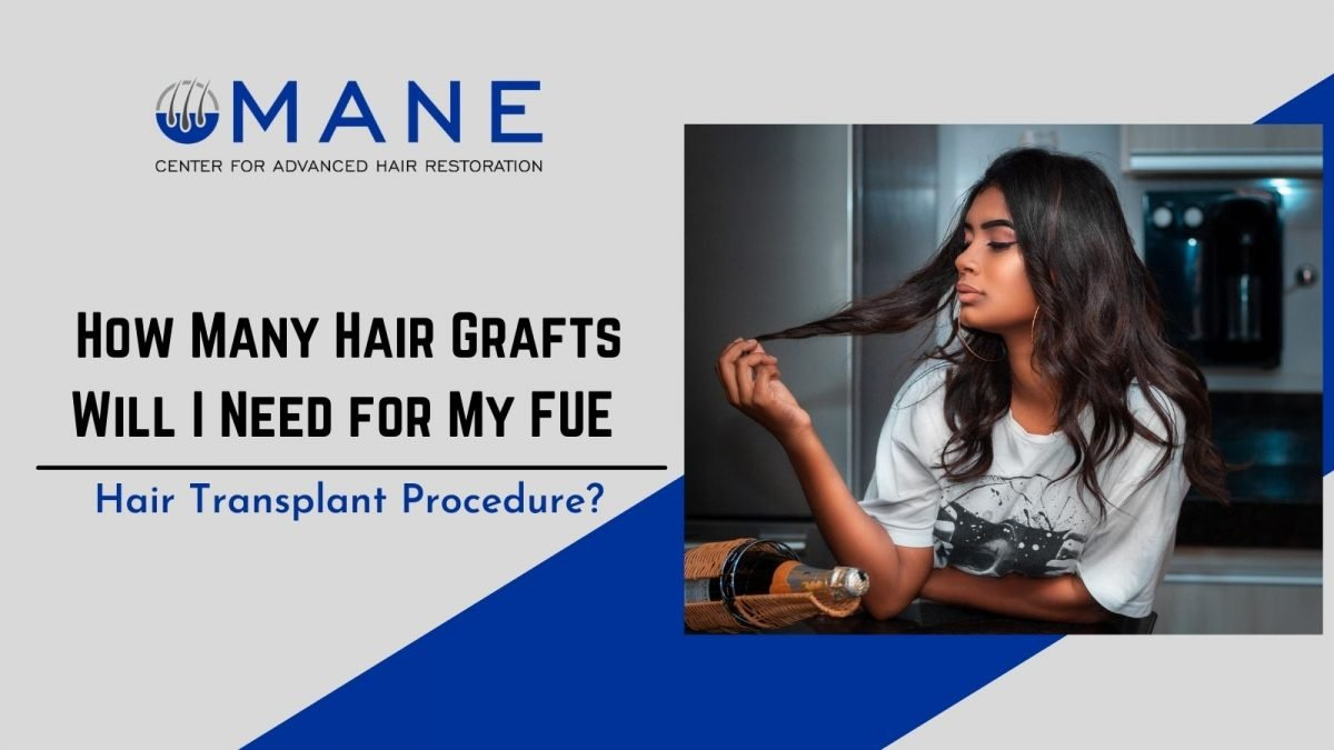 How Many Hair Grafts Will I Need for My FUE Hair Transplant Procedure?