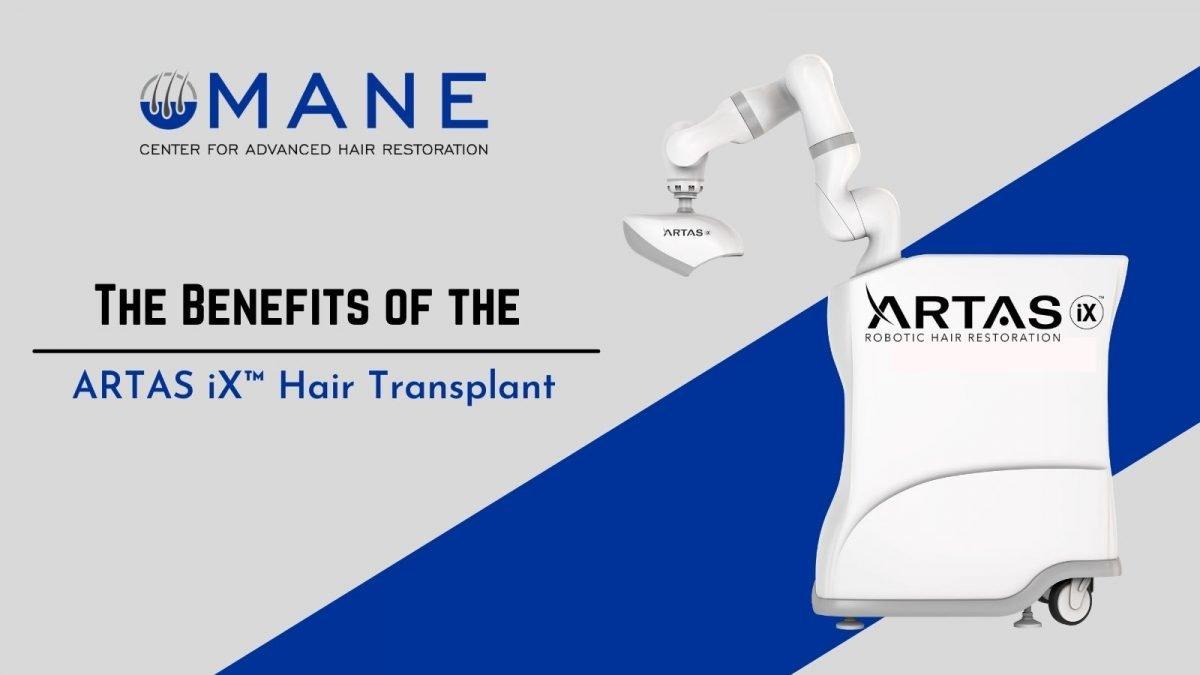 The Benefits of the ARTAS iX Hair Transplant